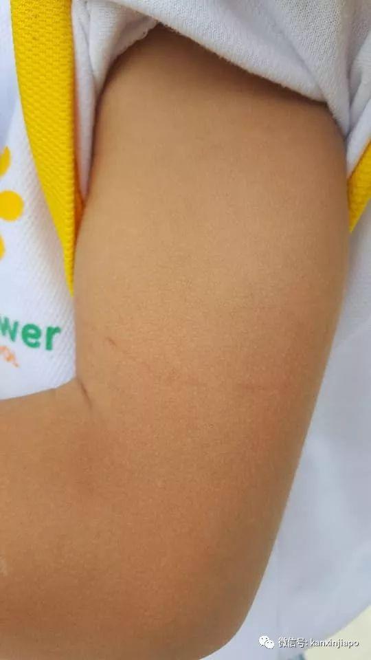 儿子身上多处瘀伤,母亲控诉新加坡幼儿园老师虐童!