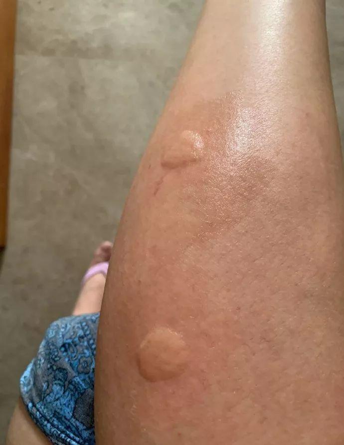 新加坡蚊子的血盆大口令我窒息……